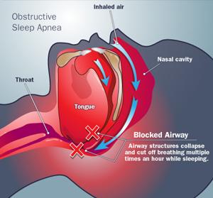 אפניאה דום נשימה בשינה – Sleep Apnea